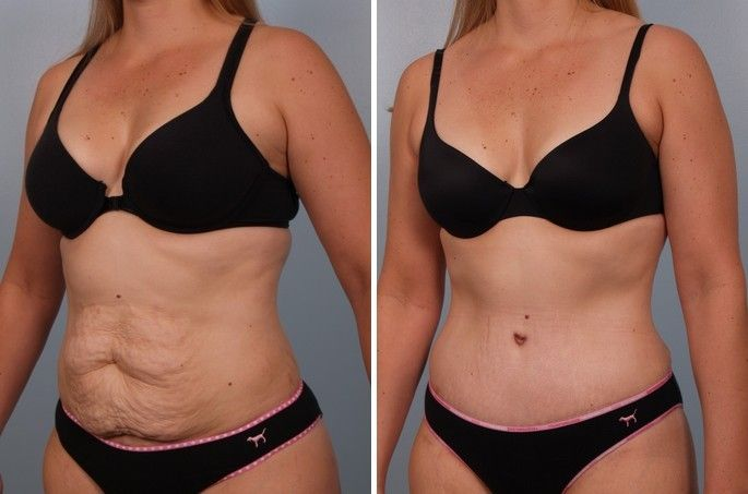 de1bb6276a Your checklist to a better tummy tuck - Cosmetic Surgery In Mexico